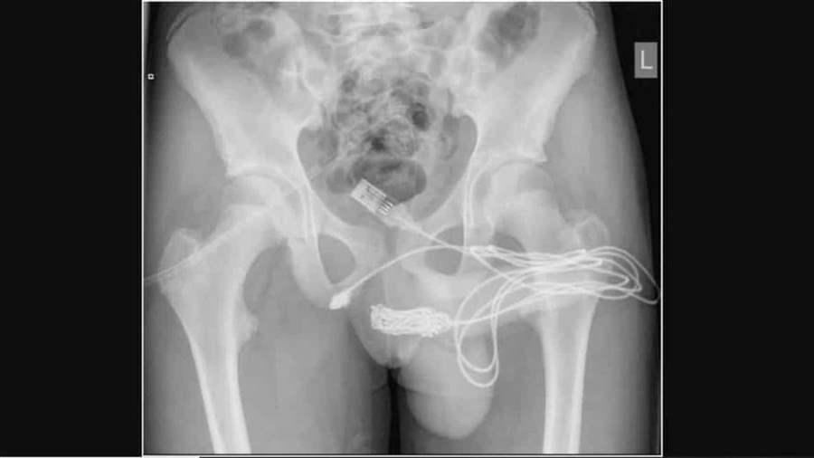 Adolescente de 15 anos passa por cirurgia após tentar medir pênis com cabo USB